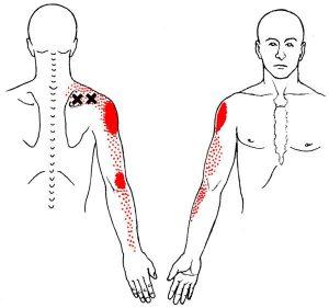 supra pain referral